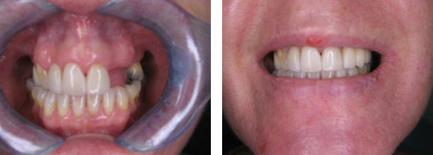 Dental Implant Before After 01
