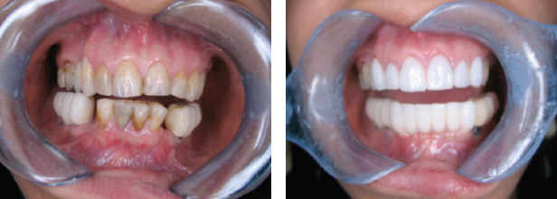Dental Bridges Before After
